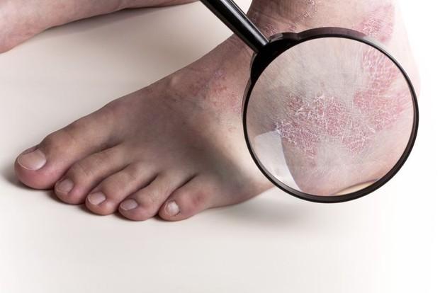 Žvynelinė – liga, paveikianti ne tik odą, bet ir žmogaus psichologinę būseną