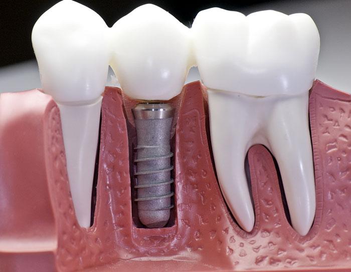 Dantų implantacija nebus baisi, jei įveiksite nežinomybę